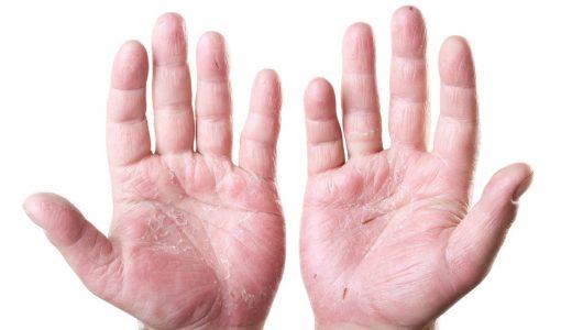 手湿疹と汗疱の違い
